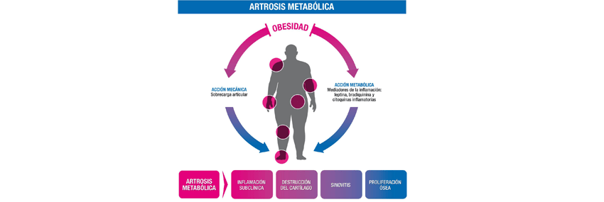Metabolic arthritis: a new diagnostic profile